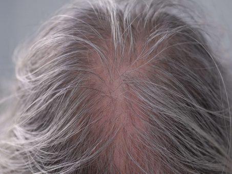 Troppi capelli sul cuscino