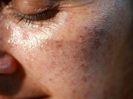 Cosa sono le macchie scure sulla pelle