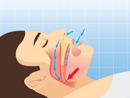 Soffri di apnee notturne?